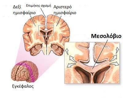 Η διασύνδεση - Τα δύο εγκεφαλικά ημισφαίρια συνδέονται με το μεσολόβιο.